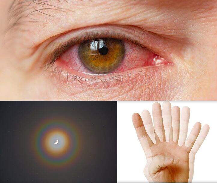 Biến chứng thường gặp của phẫu thuật Lasik trị tật khúc xạ ở mắt